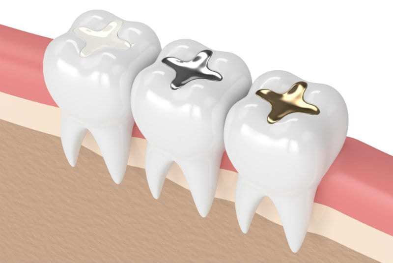 buckhead dental fillings